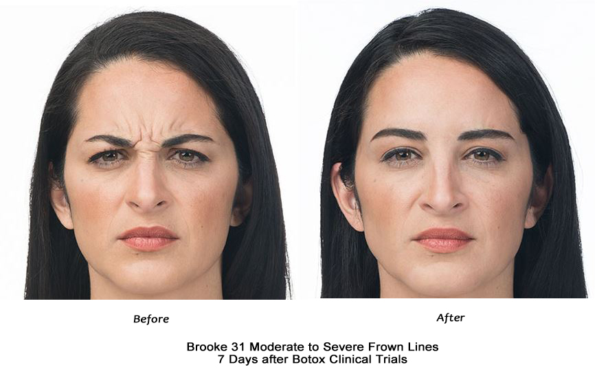 Botox Female