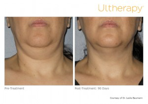 ultherapy-0014-0086w_before-90daysafter_neck